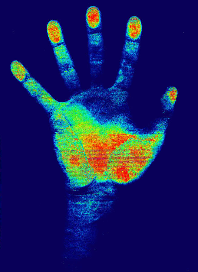 bigstock Hand Detection 733224 Medical Identity Theft   What is this?